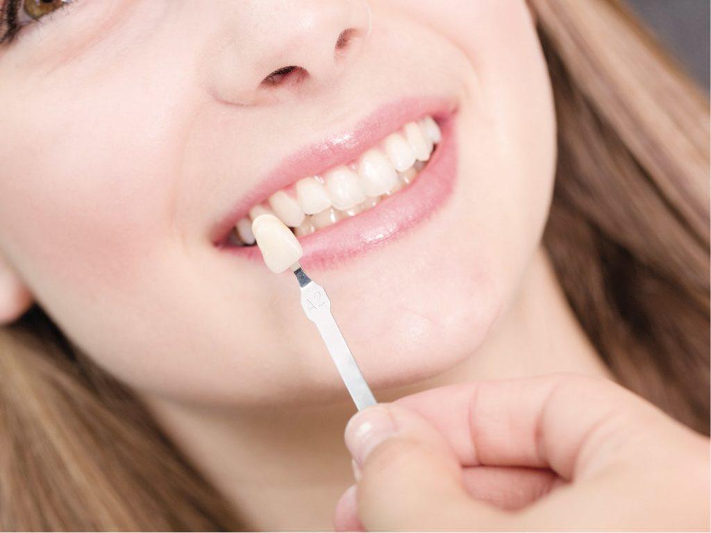 Faccette dentali Gaeta | Studio dentistico Spinosa | Dentista a Gaeta