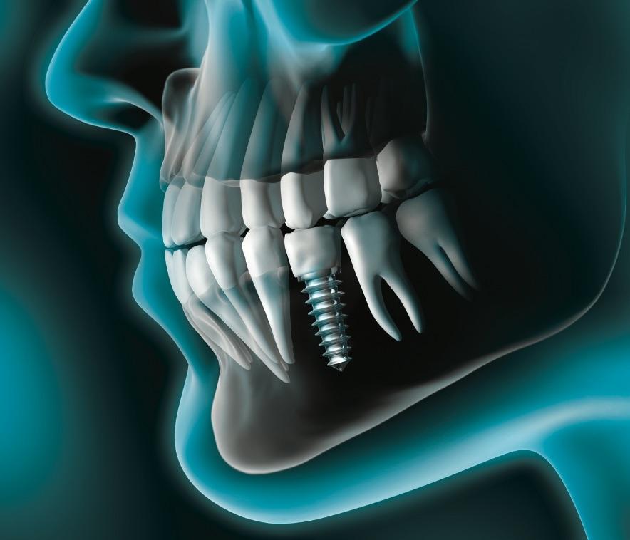 impianto dentale Gaeta | Studio dentistico Spinosa | Dentista a Gaeta