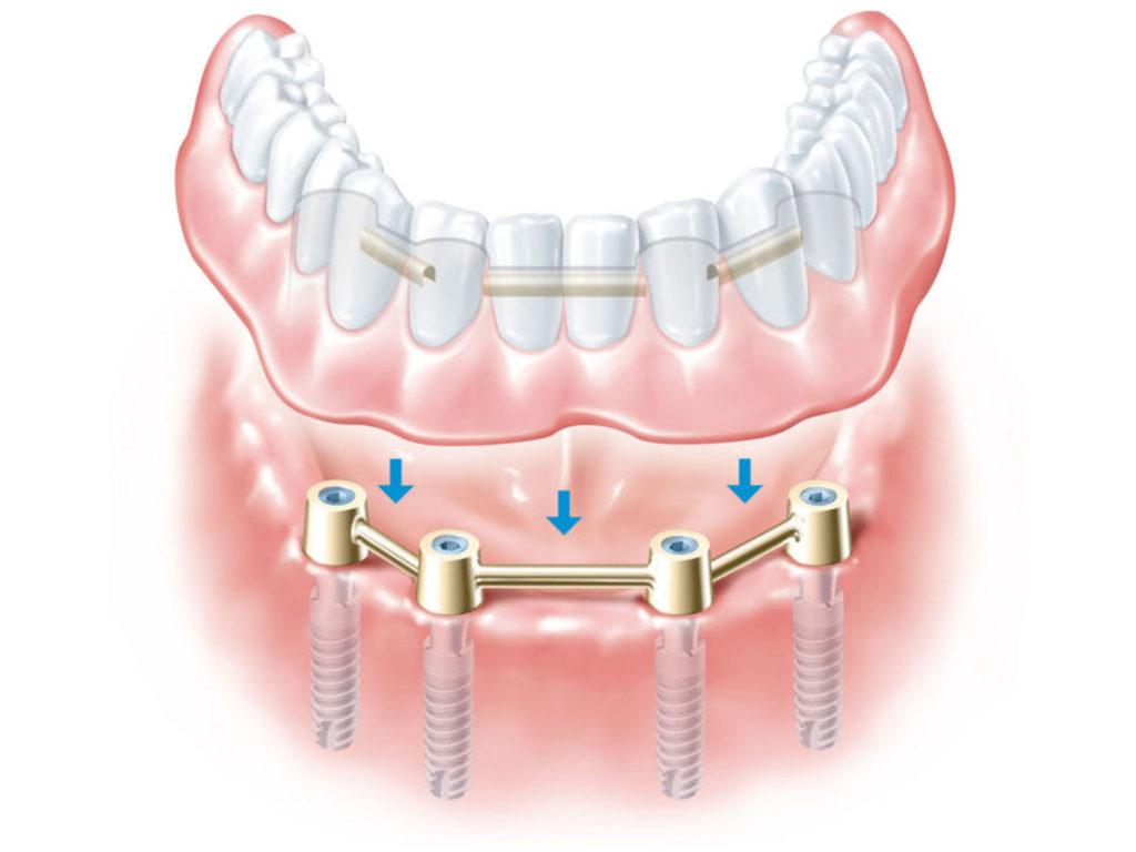 protesi su barra Gaeta | Studio dentistico Spinosa | Dentista a Gaeta