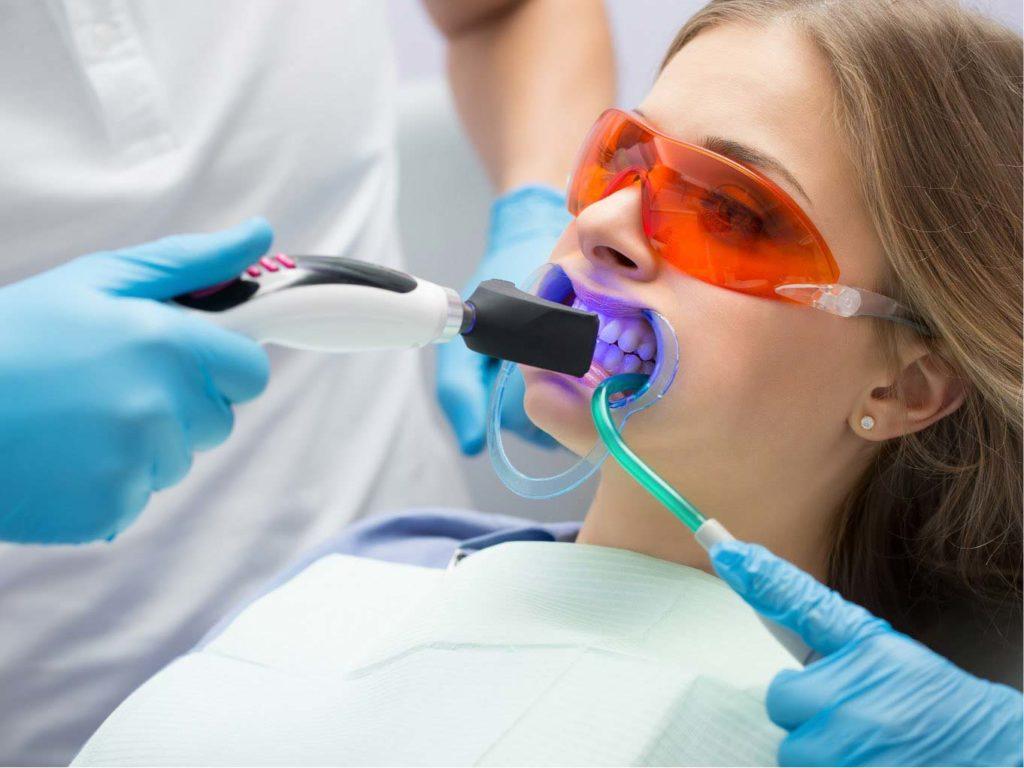 sbiancamento dentale 4 | Faccette dentali Gaeta | Studio dentistico Spinosa | Dentista a Gaeta
