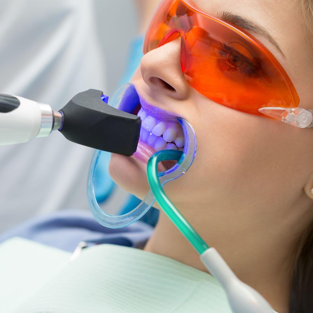 sbiancamento dentale Gaeta | Studio dentistico Spinosa | Dentista a Gaeta