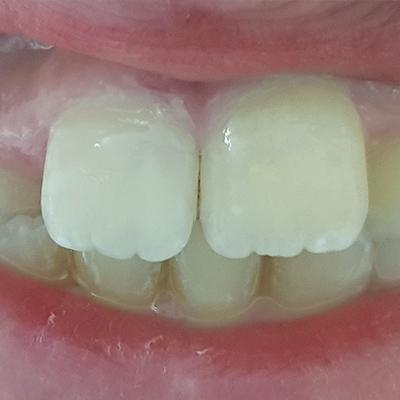 Casi clinici 1 | Studio dentistico Spinosa | Dentista a Gaeta