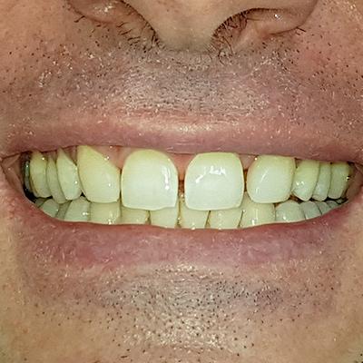 Casi clinici 5 | Studio dentistico Spinosa | Dentista a Gaeta