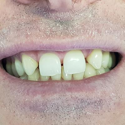 Casi clinici 6 | Studio dentistico Spinosa | Dentista a Gaeta