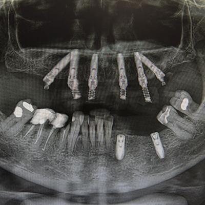 Casi clinici 3 | Studio dentistico Spinosa | Dentista a Gaeta