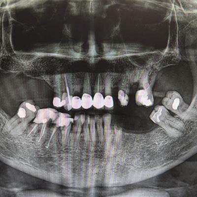Casi clinici 4 | Studio dentistico Spinosa | Dentista a Gaeta